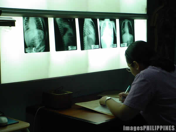 �Xray Vision�